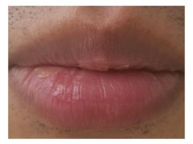 剥脱性口唇炎の症状